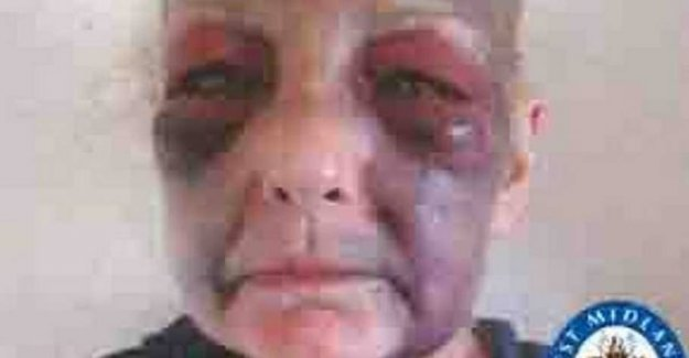 53-year-old woman cruelly mistreated by his gf