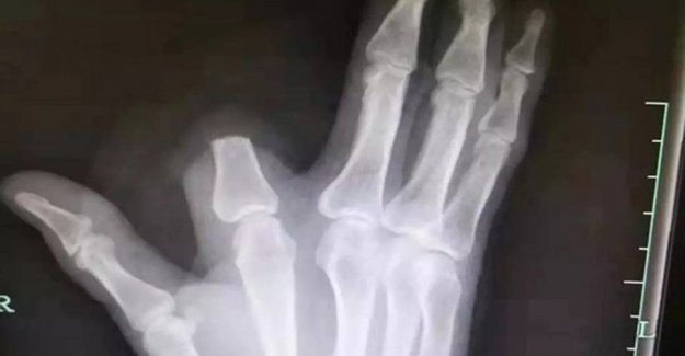 Cut your finger after snakebite: he would never have done