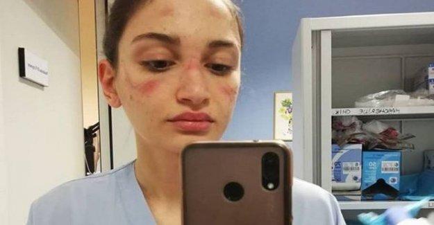 Nurse picture goes around the world: I am afraid to go to work