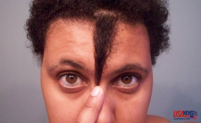 Get to know why your hair stopped growing