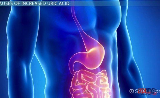 High Uric Acid Level: Causes, Symptoms, & Risk Factors