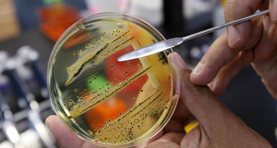 We're running out of time to stop these dangerous superbugs